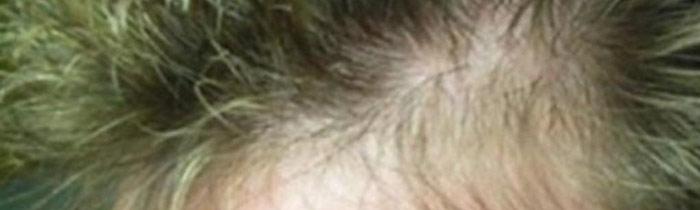 Tratamiento para que nazca cabello