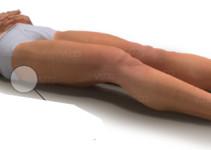 Tratamiento para úlceras por presión