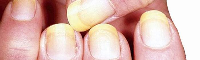 Tratamiento para uñas amarillas