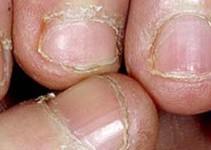Tratamiento para uñas mordidas