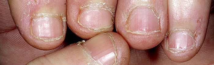 Donde cura las uñas en ekaterinburge