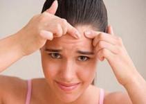 Tratamiento para barros y espinillas