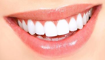 Tratamiento para blanquear dientes