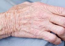 Tratamiento para el reumatismo
