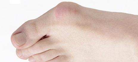 Tratamiento para juanetes en los pies