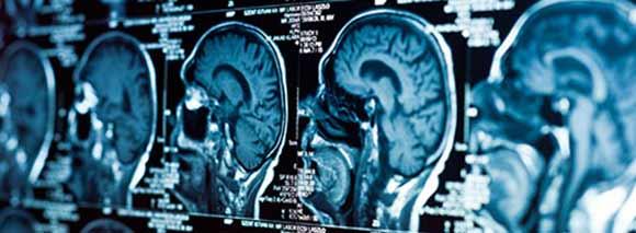 Tratamiento para neuralgia del trigémino