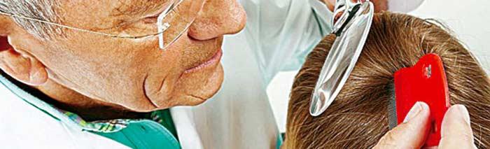 Tratamiento para pediculosis