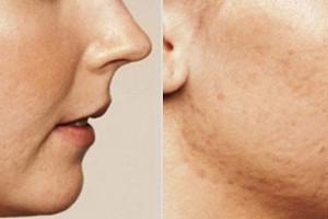 Tratamiento para marcas de acné