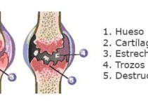 Tratamiento para osteoartritis