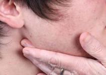 Tratamiento para ganglios inflamados