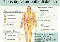 Tratamiento para neuropatía diabética