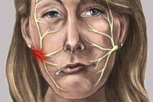 Tratamiento para parálisis facial