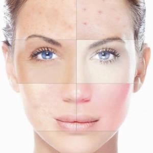 Tratamiento para piel grasa