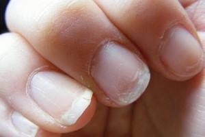 Tratamiento para uñas quebradizas