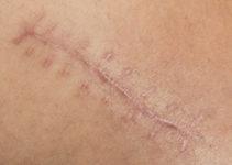Tratamiento para cicatrices