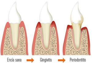 Tratamiento para gingivitis