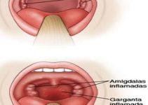 Tratamiento para faringitis
