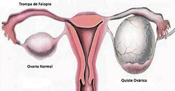 Tratamiento para quistes de ovarios