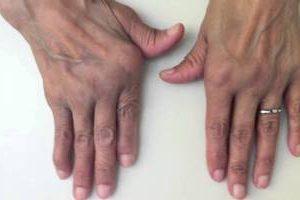 Tratamiento para la artritis