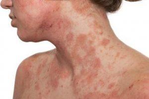 Tratamiento para dermatitis atópica