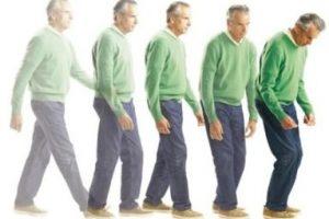 Tratamiento para Parkinson