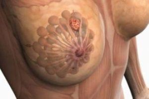 Tratamiento para quistes en los senos