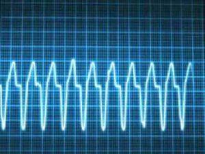 Tratamiento para taquicardia