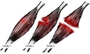 Tratamiento para desgarro muscular