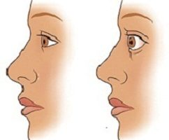 Tratamiento para hipertiroidismo