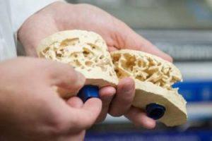 Tratamiento para osteoporosis