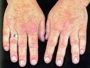 Tratamiento para parvovirus