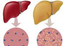 Tratamiento para el hígado graso