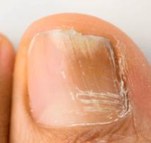 Tratamiento para uñas con hongos