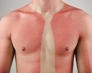 Tratamiento para quemaduras de sol