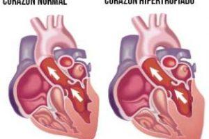 Tratamiento para insuficiencia cardiaca