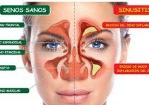 Tratamiento para la sinusitis