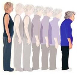 Tratamiento para osteopenia