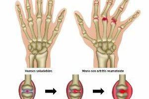 Tratamiento para artritis reumatoide