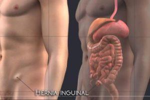 Tratamiento para la hernia inguinal